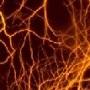 Нейронные сети выявят болезнь Альцгеймера